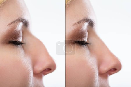 Comparison Of Woman's Nose Before And After Plastic Surgery