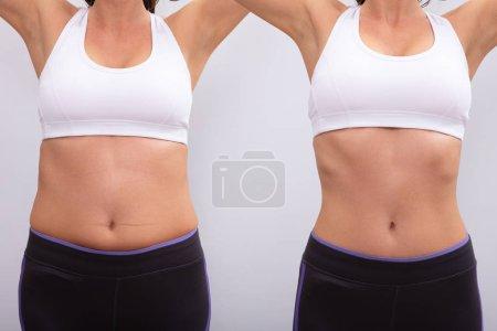 Photo pour Vue latérale d'avant et après concept montrant la graisse à la femme mince sur fond gris - image libre de droit