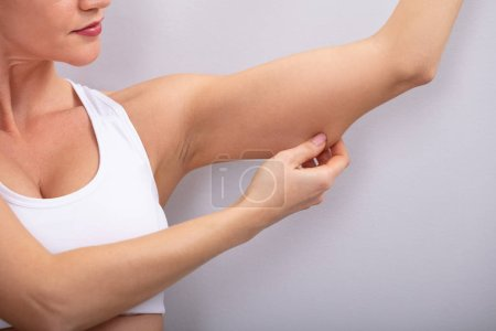 Photo for Close-up Of A Woman Checking Excessive Fat On Her Arms Over Grey Background - Royalty Free Image