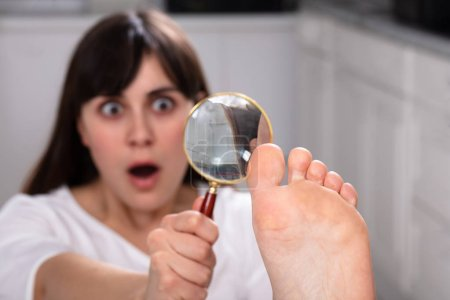 Photo for Shocked Young Woman Looking At Her Toe Nails With Magnifying Glass - Royalty Free Image
