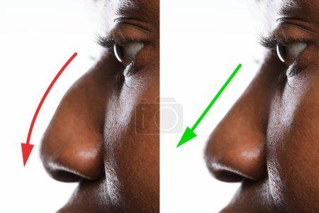 Photo pour Nez de femme avant et après la chirurgie plastique avec des flèches rouges et vertes - image libre de droit