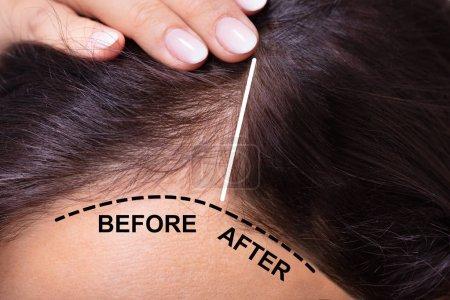 Photo pour Femme avant et après le traitement de perte de cheveux - image libre de droit