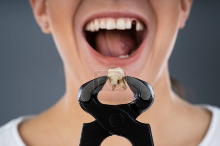 Photo for Woman Holding Her Broken Denture In Pincers - Royalty Free Image