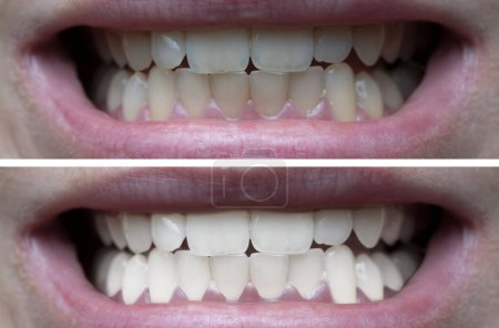 Photo for Closeup of woman's teeth before and after whitening - Royalty Free Image