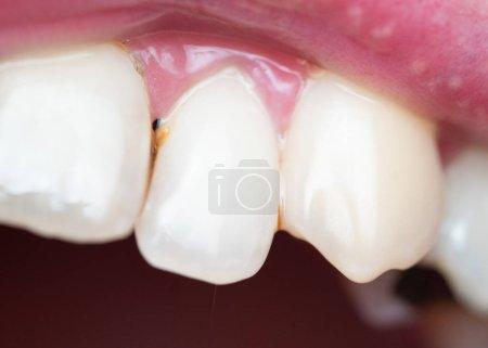 Photo pour Gros plan de la plaque dentaire sur les dents de l'homme causée par le café résiduel - image libre de droit