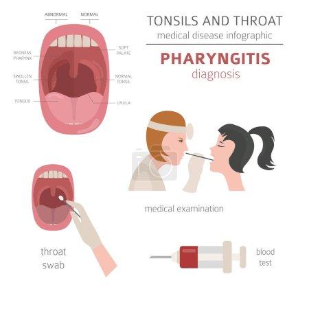 Illustration pour Amygdales et maladies de la gorge. Symptômes de pharyngite, icône du traitement. Conception d'infographie médicale. Illustration vectorielle - image libre de droit