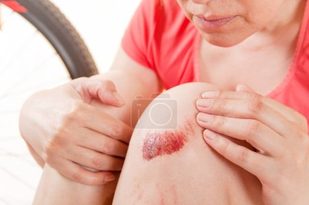 woman looking at her broken knee against the background of a bic