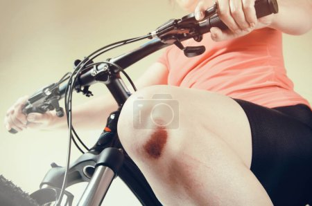 woman with a broken knee on a bicycle, close-up