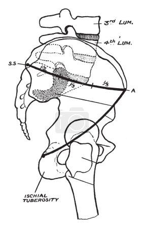 Ilustración de Esta ilustración representa el desplazamiento del fémur, vintage de línea de dibujo o ilustración de grabado. - Imagen libre de derechos