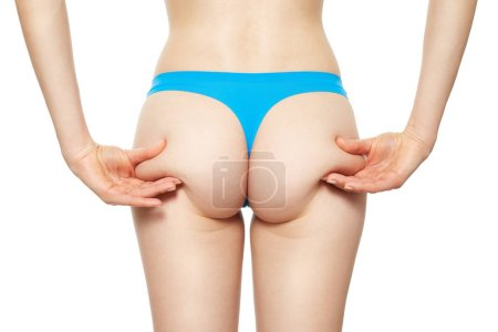 Female buttocks in blue panties with cellulite