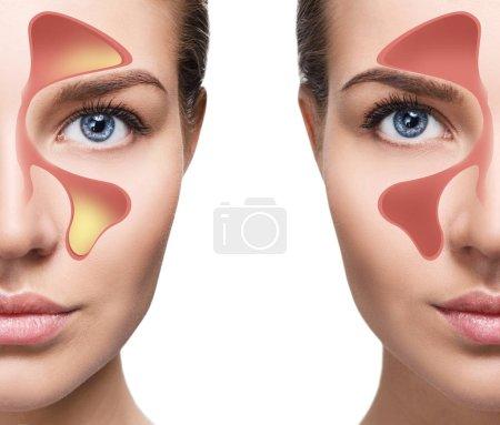 Photo pour Visage de femme montre des sinus nasaux avec froid sur fond blanc. Allergies à la poussière. Grippe. Les gens attrapé le rhume et les allergies. - image libre de droit