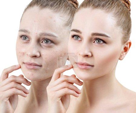 Photo pour Femme avec acné avant et après le traitement et le maquillage. Concepts de soins de la peau - image libre de droit