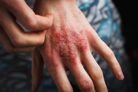 Man scratch oneself, dry flaky skin on hand with p...