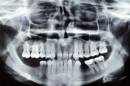 Dental x-ray image