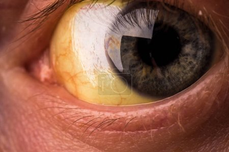 Photo pour Ictère obstructif avec décoloration jaunâtre sévère des yeux . - image libre de droit