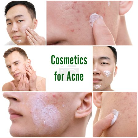 Set with young men applying cosmetics for acne on skin