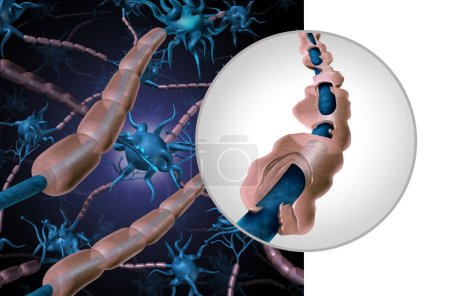Photo for Multiple sclerosis myelin disease or MS autoimmune disorder with healthy nerve with exposed fibre with scarrred cell sheath loss as a 3D illustration. - Royalty Free Image