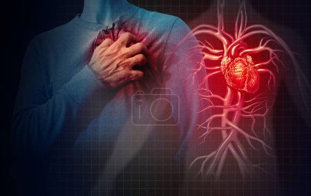 Heart attack concept and human cardiovascular pain...