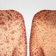 Transmission of measles concept as a deadly outbre...