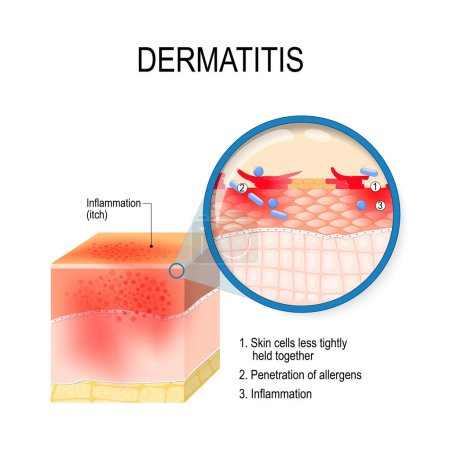 Illustration for Atopic dermatitis (atopic eczema). Cross-section of human skin with dermatitis. Close-up of skin cells, and penetration of allergens. Vector illustration for medical, biological, and educational use - Royalty Free Image