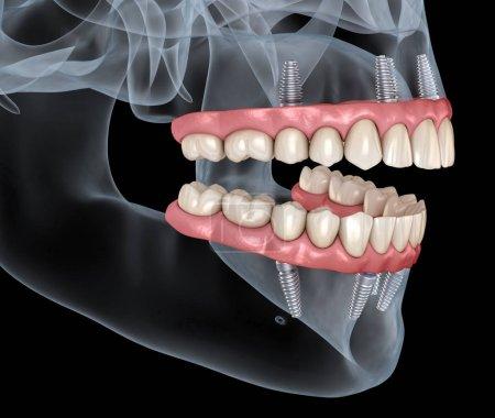 Photo pour Prothèse mandibulaire et maxillaire Tout sur 4 système supporté par les implants. Exactitude médicale Illustration 3D du concept de dents et de prothèses dentaires humaines - image libre de droit