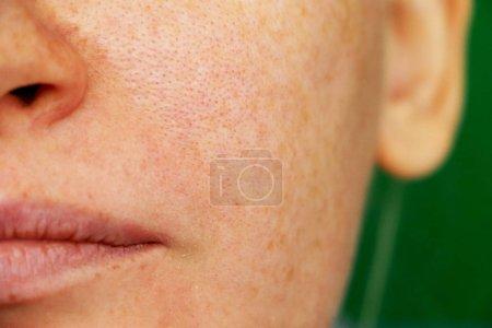 Freckles, pigmentation, enlarged pores. Girl with ...