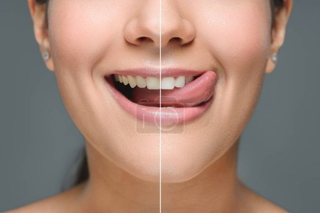 Partial view of smiling woman with white teeth sticking tongue out isolated on grey, teeth whitening concept