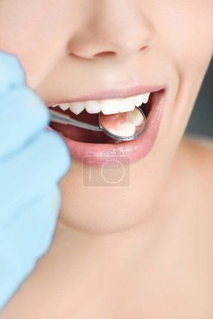 partial view of dentist with dental mirror checking womans teeth