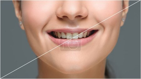 partial view of smiling woman with beautiful white teeth isolated on grey, teeth whitening concept