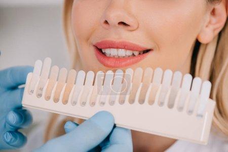Photo pour Vue recadrée du dentiste mâle correspondant à la couleur des dents de la femme avec palette en clinique, concept de blanchiment des dents - image libre de droit