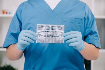 Photo pour Vue recadrée de l'orthodontiste tenant des dents radiographie en clinique - image libre de droit