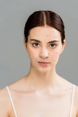 Photo for Woman with acne on face looking at camera isolated on grey - Royalty Free Image