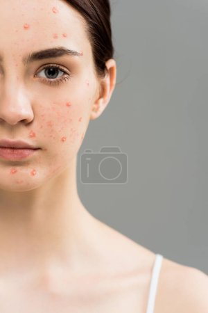Photo for Cropped view of young woman with acne looking at camera isolated on grey - Royalty Free Image