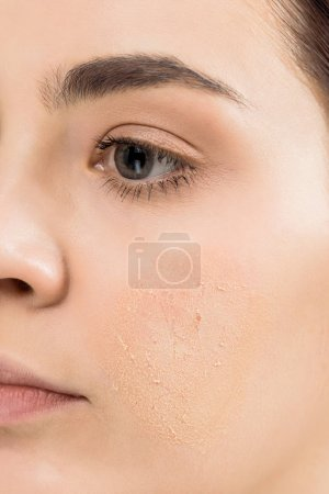 Photo for Cropped view of young woman with problem skin - Royalty Free Image