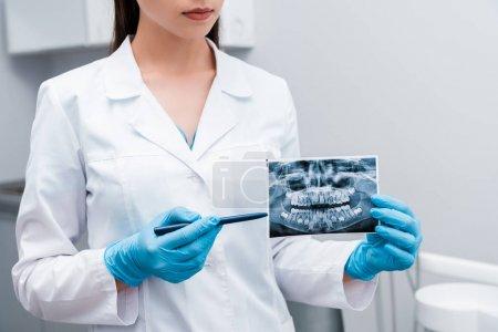 Photo pour Vue recadrée du dentiste dans les gants bleus de latex retenant le stylo près de rayon X - image libre de droit