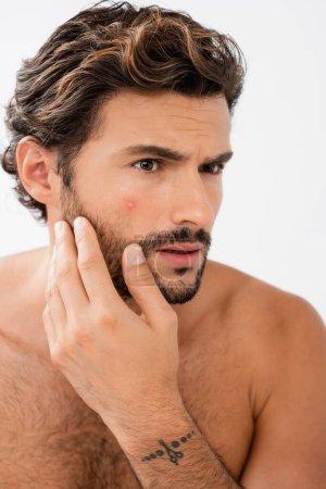 Photo pour Homme inquiet avec acné sur la joue isolé sur gris - image libre de droit