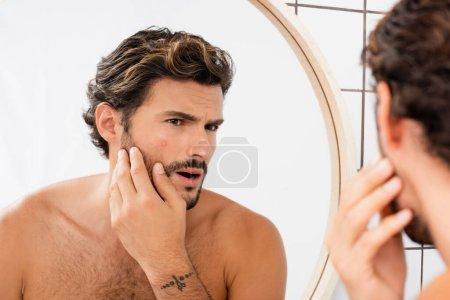 Photo pour Homme inquiet toucher la joue avec l'acné tout en regardant miroir dans la salle de bain - image libre de droit