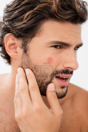 Photo pour Homme confus touchant la joue avec l'acné isolé sur le gris - image libre de droit