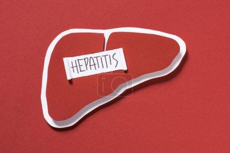 vue du haut du foie et lettrage hépatite sur fond rouge, concept de journée mondiale de l'hépatite