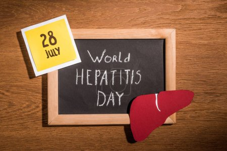 Photo for Top view of blackboard with lettering world hepatitis day, liver and stick it with lettering 28th july on table - Royalty Free Image