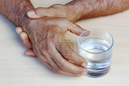 Photo for The hands of a man with Parkinson's disease tremble. Strongly trembling hands of an older man - Royalty Free Image