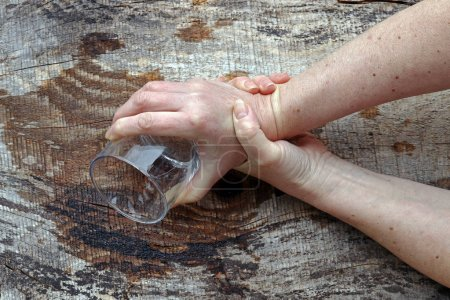 Photo for A woman with Parkinson's shakes her hands so badly that she can no longer hold a glass. Strongly trembling hands of an older woman - Royalty Free Image