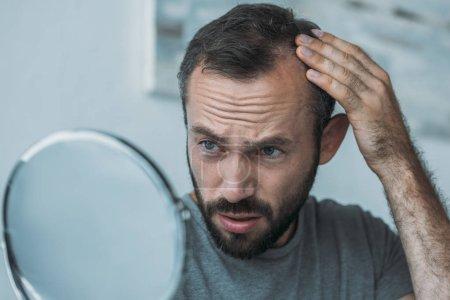 Verärgerter Mann mittleren Alters mit Haarausfall im Spiegel