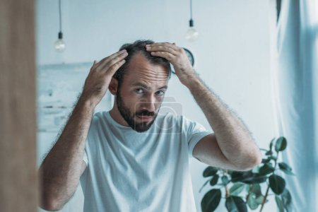 mid adult man with alopecia looking at mirror, hair loss concept