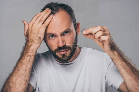 bearded middle aged man holding fallen hair and looking at camera isolated on grey