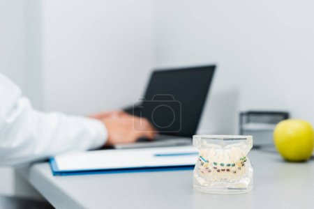 selective focus of dental jaw model with braces near apple