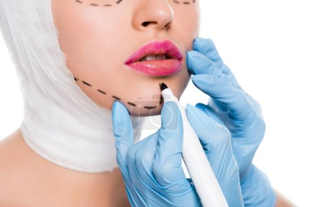 Photo for Cropped view of plastic surgeon in blue latex gloves holding marker pen near woman with marks on face isolated on white - Royalty Free Image