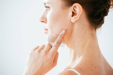 Photo for Attractive woman pointing with finger at mole on face isolated on white - Royalty Free Image