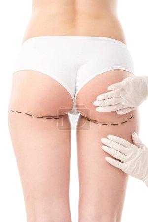 Photo pour Vue recadrée du chirurgien plasticien en gants de latex et patient en culotte avec des marques sur le corps isolé sur blanc - image libre de droit