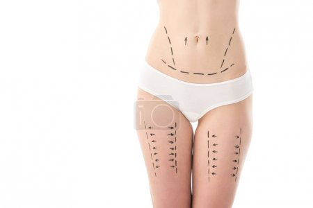 Photo pour Vue partielle de la femme mince en culotte avec des marques sur le ventre et les hanches isolées sur blanc - image libre de droit